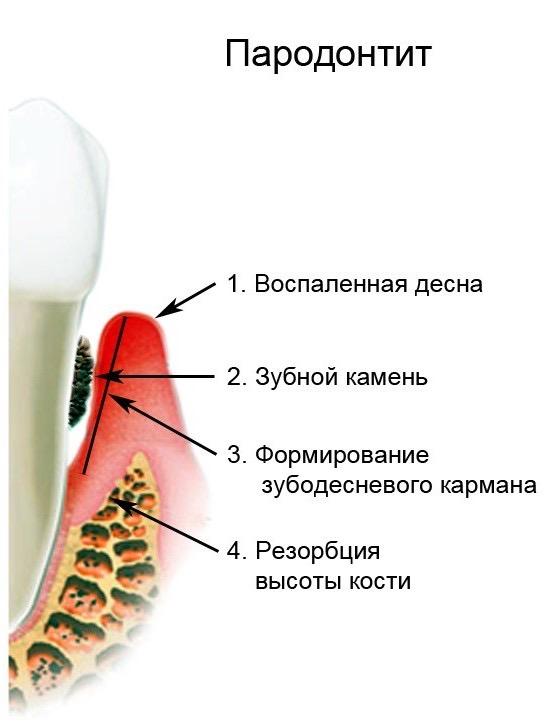 Заболевание зубов – парадонтит