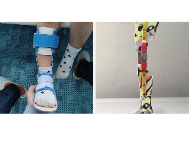 Туторы на нижние конечности для детей: цели использования и разновидности